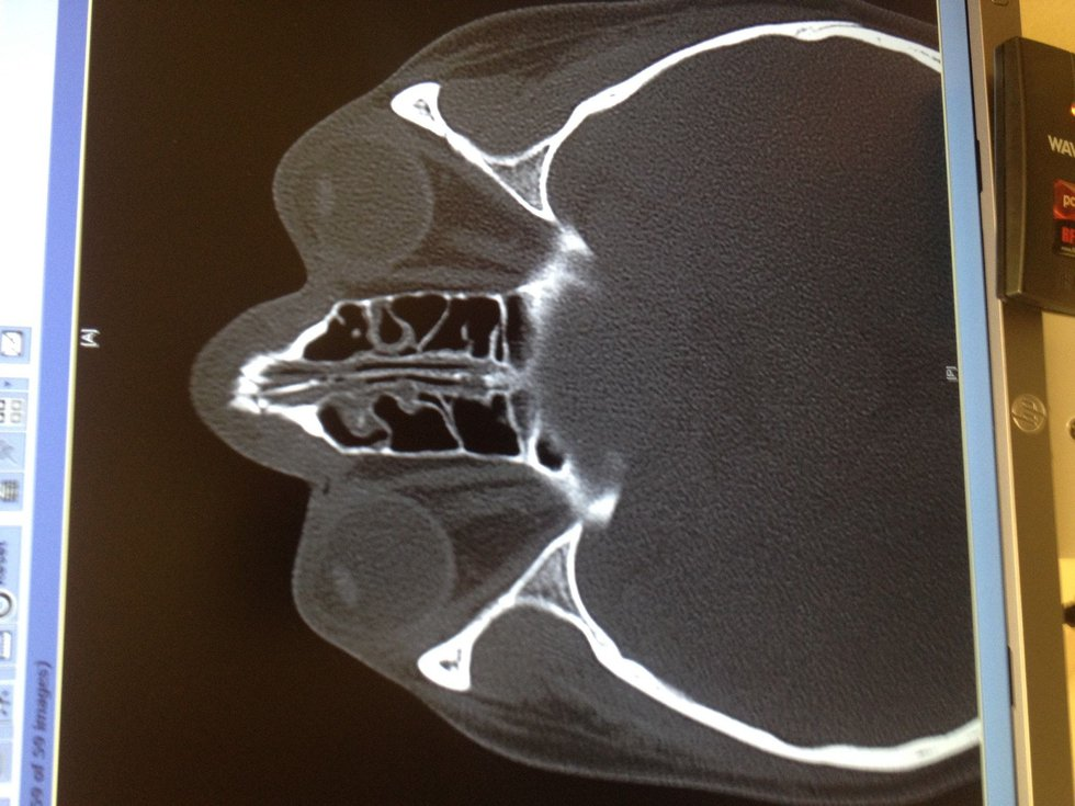 X-ray of victim's face showing broken nose (provided by victim to WIS)